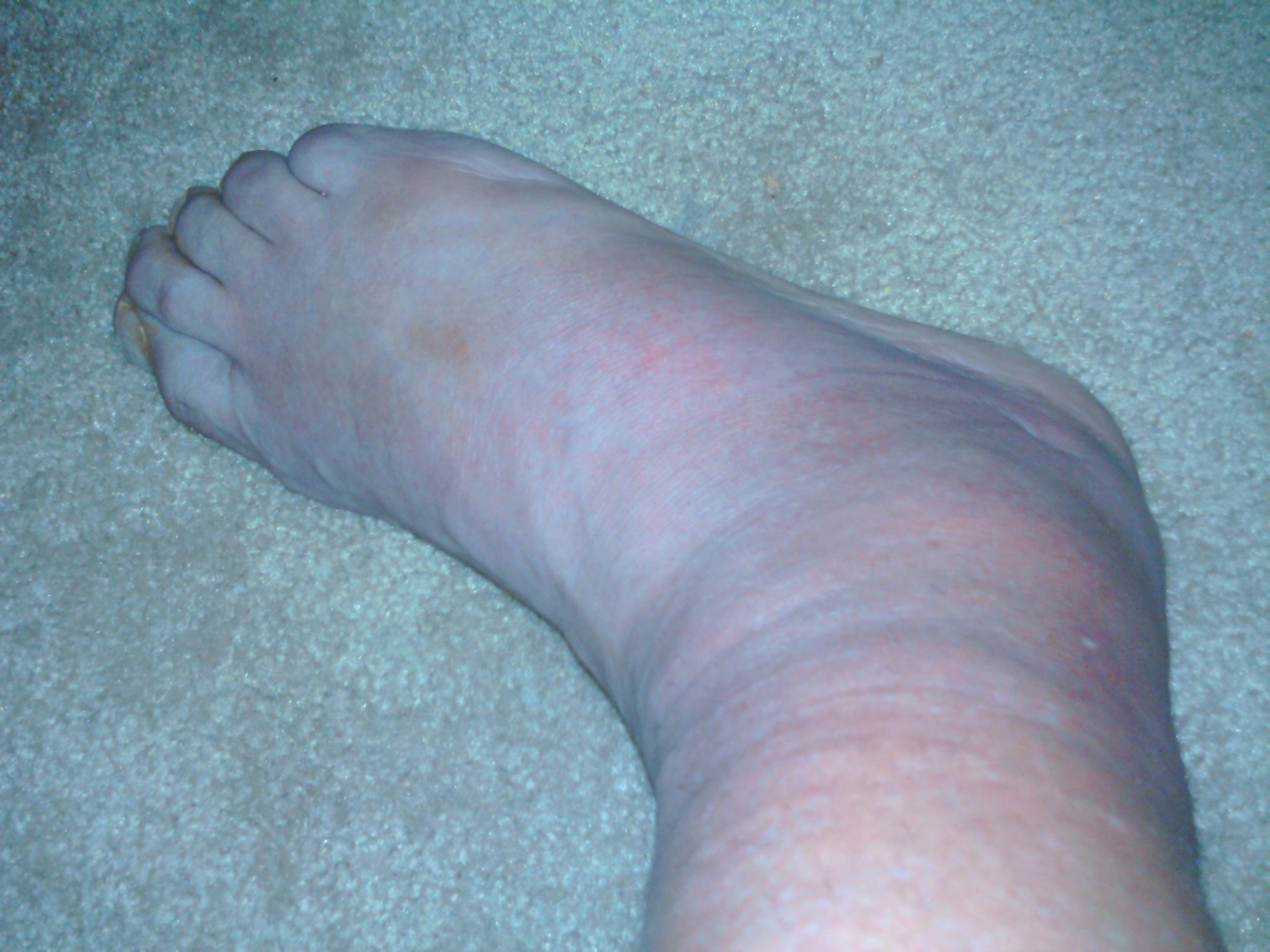 achilles tendon debridement and prp